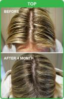 Natural and Herbal Hair Loss Treatment Clinic in Sydney